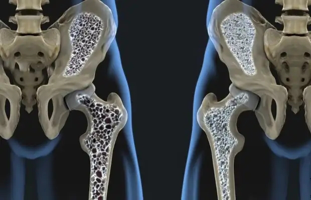 Osteoporosis is Not a Calcium Deficiency