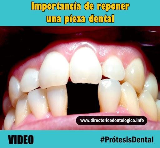perdida-dientes