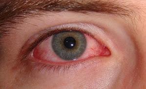 Mirtoplus Herbal Sakit Mata Konjungtivitis