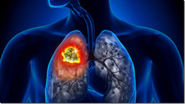 What-is-Mesothelioma-344x193