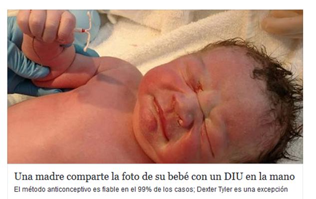 El  bebé vino con un DIU en la mano