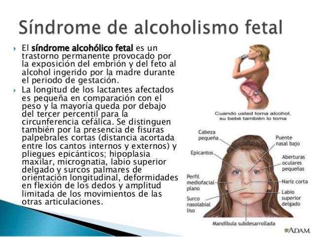 La codificación del alcoholismo en nii sklifosovskogo