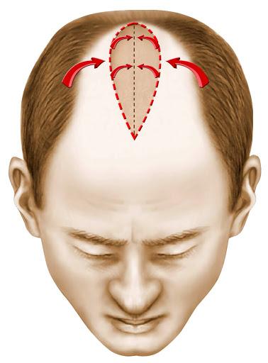 rédit illustration SOF.CPRE : réimplanter cheveux sur les tempes dégarnies