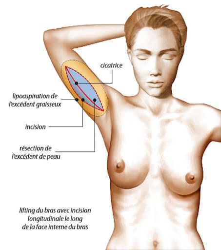 lifting des bras brachioplastie incision cicatrice