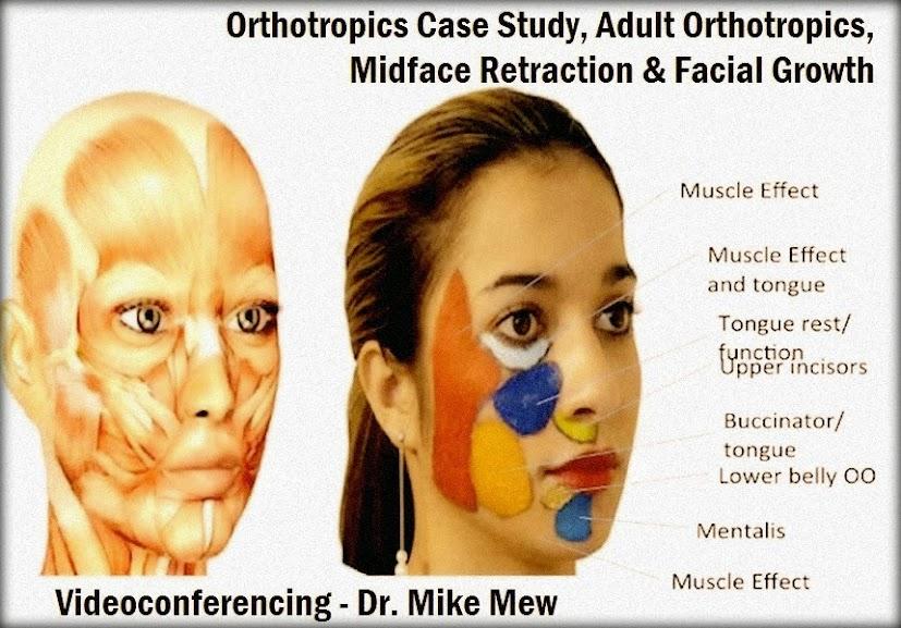 orthotropics
