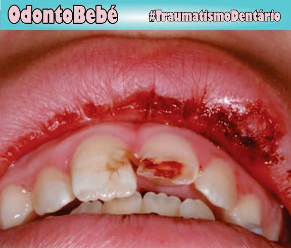 traumatismo-dentário