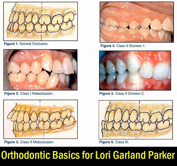 orthodontic-basics