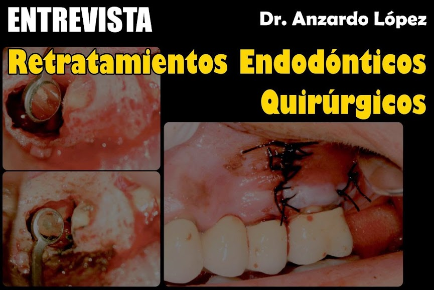 retratamiento-endodoncia