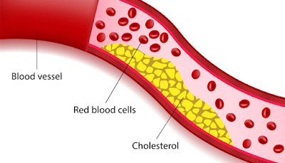 high cholesterol complications