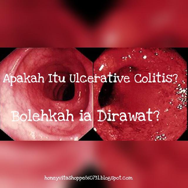 Apakah Ulcerative Colitis? Adakah Ia Boleh Diubati?