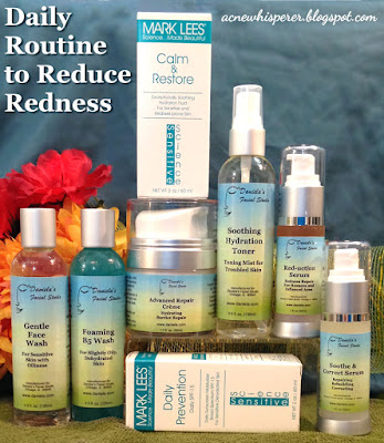 A great daily routine for redness and sensitivity in just 4 easy steps (5 in a more arid climate)!