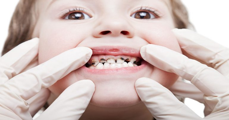 7 Ways To Prevent Tooth Decay In Toddlers