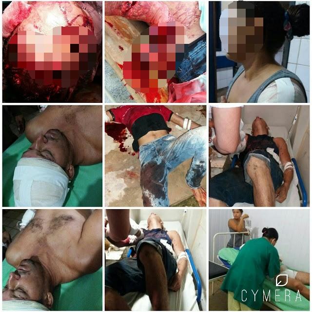 Tentativa de assalto termina com vários cortados a golpes de facão na comunidade tucunaré