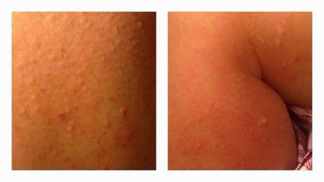 allergic rash from aloe vera forever aloe propolis creme aloe vera gelly. Black Bedroom Furniture Sets. Home Design Ideas
