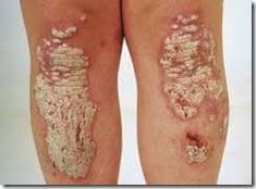 psoriase-placas-1