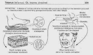 What Is Tetanus?