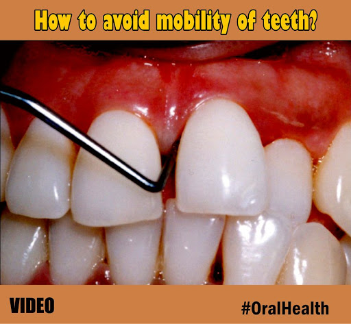 mobility-of-teeth