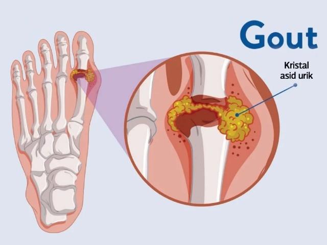Ikhtiar rawat penyakit gout dengan minyak urut moden MMG.
