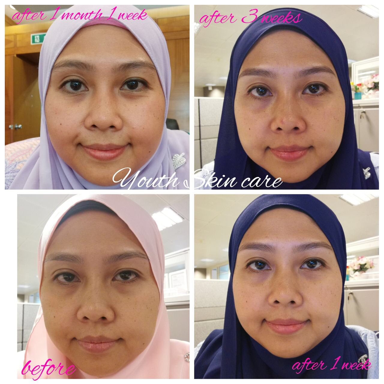 harga youth skincare shaklee  youth skincare shaklee review  pakai youth shaklee naik jerawat  kelebihan youth skincare shaklee  pengalaman guna youth shaklee.  youth shaklee vs mary kay youth shaklee price  pengalaman guna youth shaklee.  youth shaklee cleanser  youth shaklee review  pakai youth shaklee naik jerawat  youth shaklee testimoni  youth shaklee vs mary kay set jeragat shaklee pengalaman guna youth shaklee. testimoni youth shaklee harga youth skincare shaklee pakai youth shaklee naik jerawat serum youth shaklee toner youth shaklee testimoni cleanser youth shaklee testimoni serum youth shaklee harga serum youth shaklee cara pakai serum youth shaklee shaklee youth serum reviews testimoni serum shaklee pengalaman guna youth shaklee. night cream youth shaklee youth shaklee testimoni harga skincare youth shaklee pakai youth shaklee naik jerawat pengalaman guna youth shaklee. youth shaklee cleanser youth shaklee vs mary kay youth skincare shaklee review youth shaklee untuk jeragat kelebihan youth skincare shaklee  youth shaklee untuk jeragat  shaklee youth skincare reviews  youth shaklee cleanser