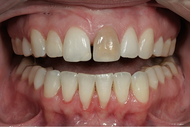 in Discolored adults teeth