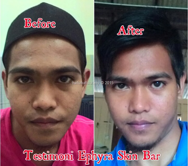 testimoni ephyra skin bar_1