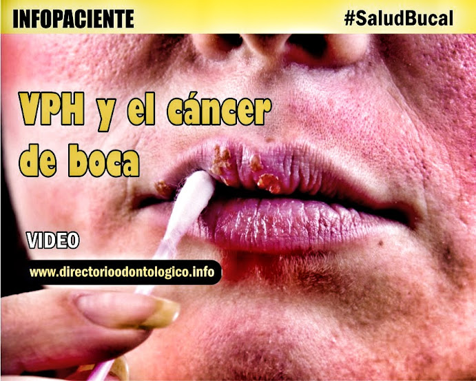 VPH Cancer Bucal