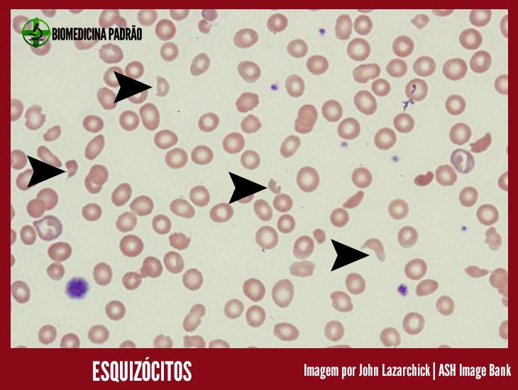 Esquizócitos