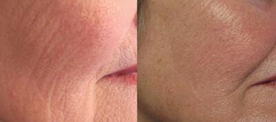 relâchement du visage et du cou