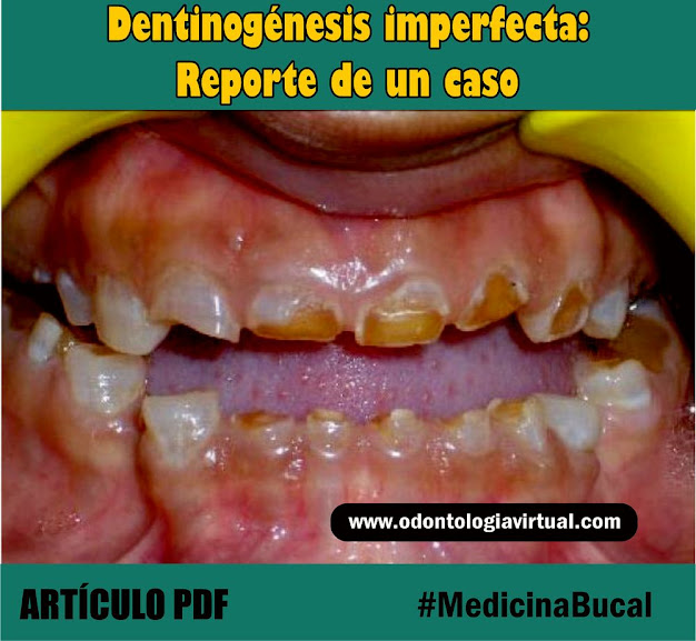 dentinogénesis-imperfecta