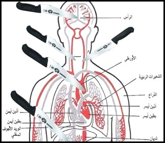 Knife.Ananatomical chartGazan Zahran Barbah on October 8, showing which parts of the body to aim for when stabbing a victim