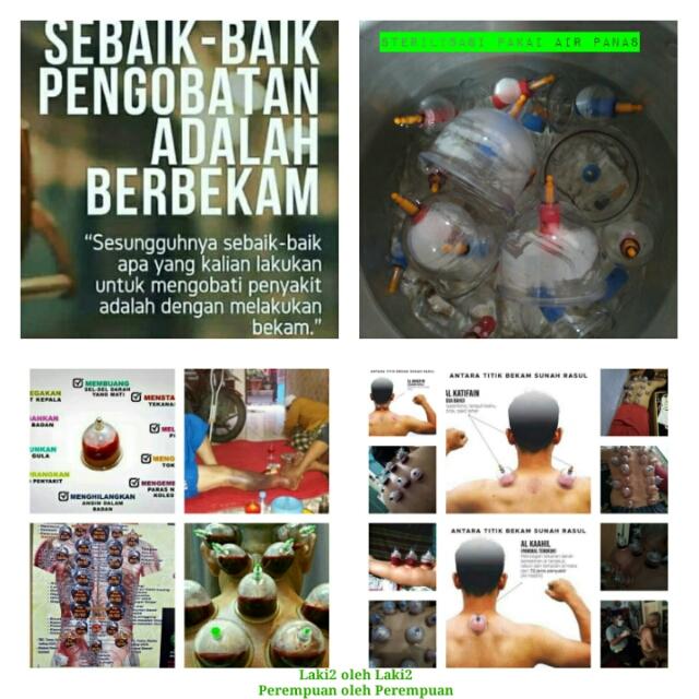 JASA TERAPI BEKAM DI BOGOR M ERWIN ( ahli Jasa Tukang Pijat Urut di Bogor)