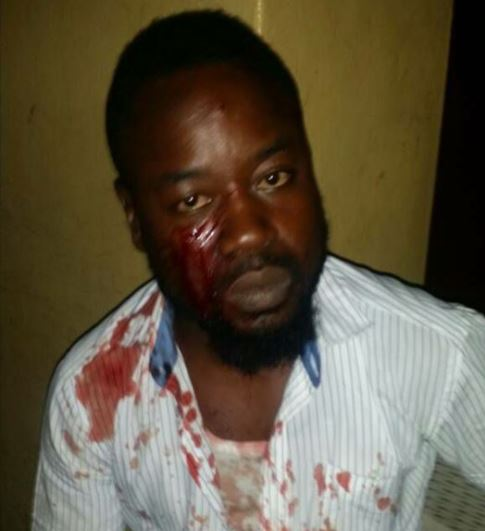 Ritualists Who Disguised As UNILAG Lecturers Attack Student (Photos)