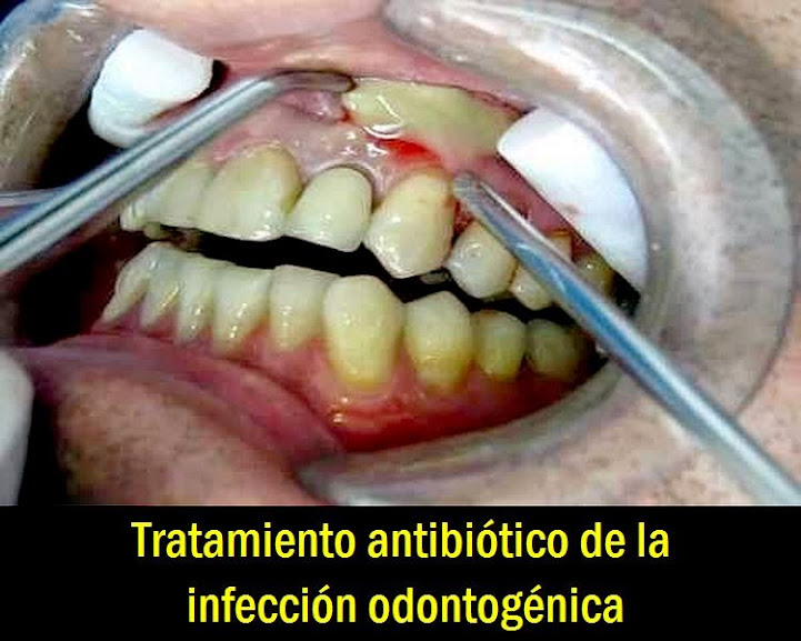 infeccion-odontogenica