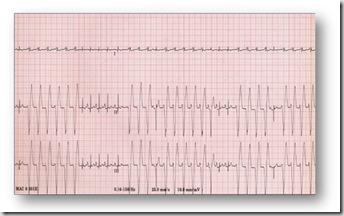 elettrocardiogramma-cane (1) (1)