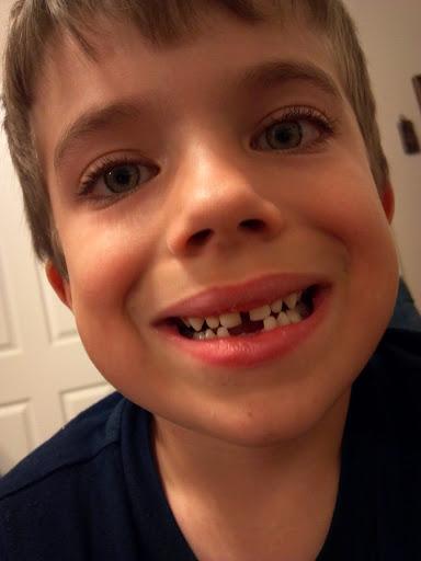 Ian's tooth gap