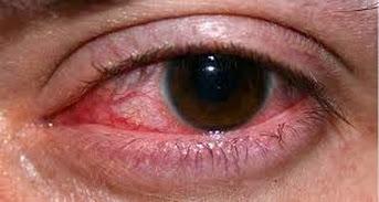 Mirtoplus Herbal Mata Merah