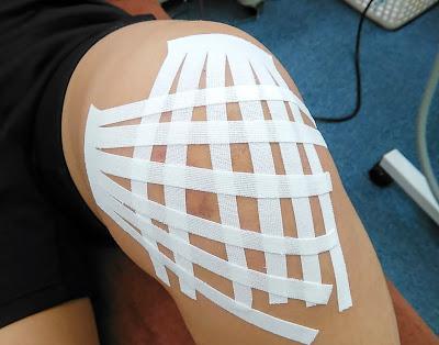 膝の腫れへのテープ