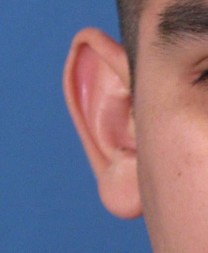 Chỉnh hình tai vểnh Cà Mau | Tạo hình thẩm mỹ tai vểnh Cà Mau | Chỉnh hình tai lệch không đều hai bên Cà Mau | Tạo hình thẩm mỹ tai lệnh không đều hai bên Cà Mau | Chỉnh hình tai dảo to Cà Mau | tạo hình thẩm mỹ tai dảo to Cà Mau | Mỹ Viện Nano Cà Mau | Phòng Khám Chuyên Khoa Kỹ Thuật Cao IMedic.vn | Bs chuyên khoa NGUYỄN ĐẶNG DUY 0919449459