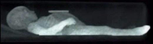 rosalia-lombardo-6
