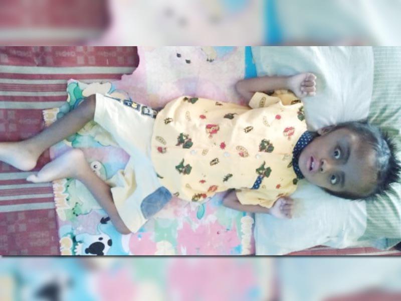 Limit BPJS Habis, Bocah 4 Tahun Pengidap Tumor Ini Butuh Bantuan