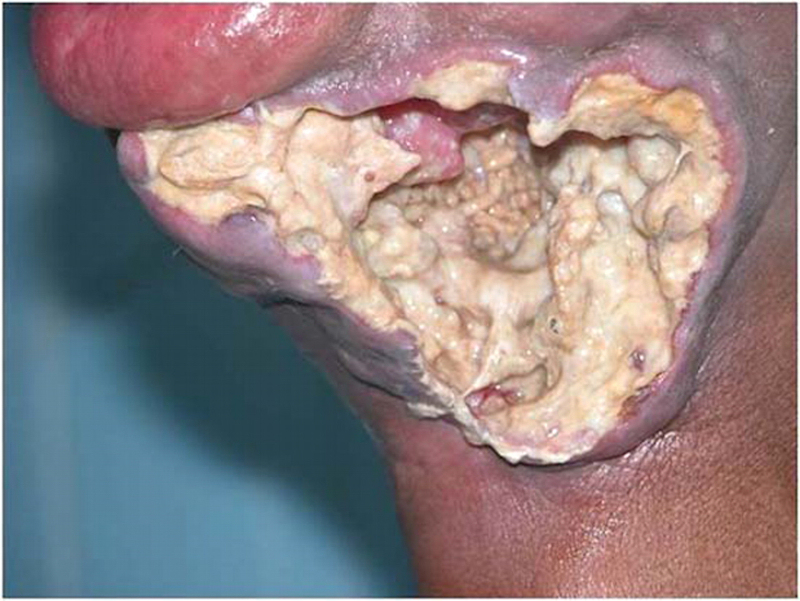 Do You Get Sick From Eating Moldy Food