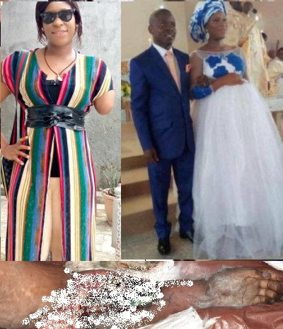 Woman's Arm Amputated After Her Husband Butchered Her Over 'Infidelity' (Graphic)