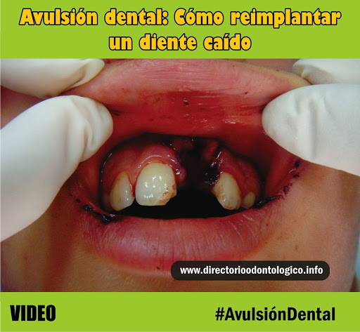 avulsion-diente-permanente