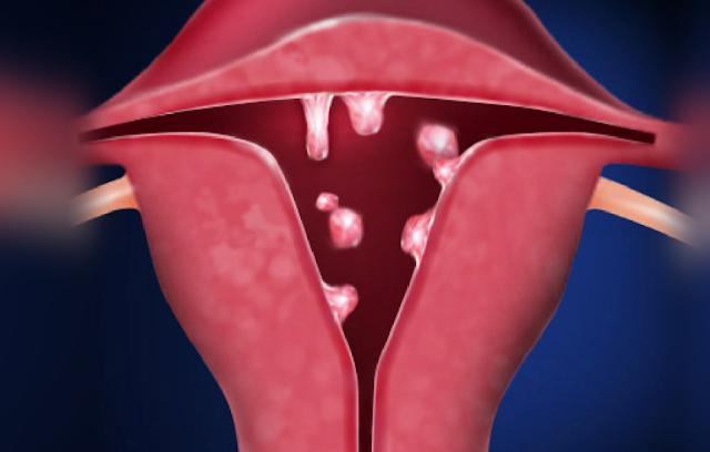 Penyakit Pada Rahim Perempuan