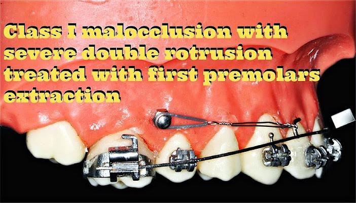 Class-I-malocclusion