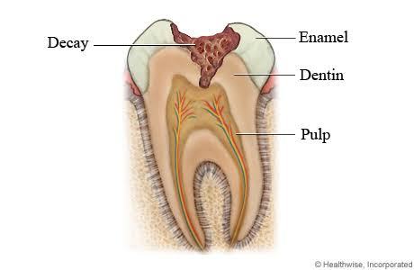My Cravings and My Teeth