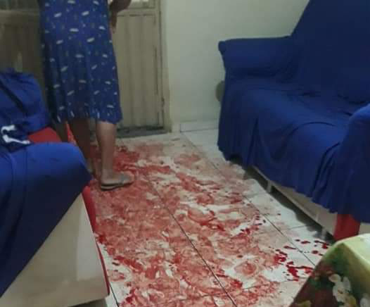 Filha de idoso atingido por bomba junina em Tabira clama por justiça