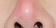Điều trị lấy sống mũi bị đỏ nhiễm trùng sau sửa mũi Cà Mau | Trị mũi đỏ nhiễm trùng sau nâng sửa mũi Cà Mau | Lấy sụn mũi dị ứng sau thẩm mỹ Cà Mau | Mỹ Viện Nano Cà Mau | Phòng Khám Chuyên Khoa Kỹ Thuật Cao IMedic.vn | Bs chuyên khoa NGUYỄN ĐẶNG DUY 0919449459