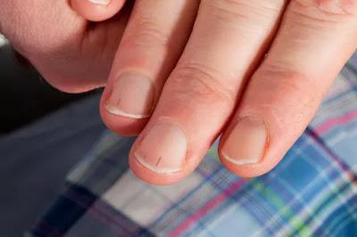 What is a splinter hemorrhage in the fingernail