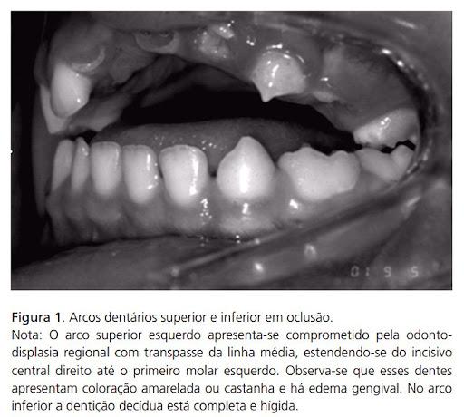 Odontodisplasia